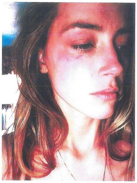 Johnny Depp'in açtığı davanın tanığı konuştu: Morluklar sahte! - Magazin haberleri