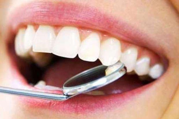 Diş taşı (Tartar) oluşumu ve temizliği