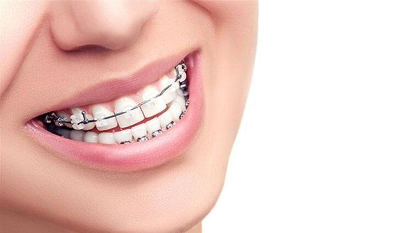 Diş teli nasıl çıkartılır?
