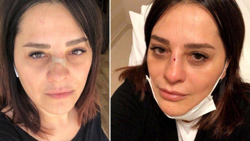 Reyhan Karaca'nın burnu kırıldı - Magazin haberleri