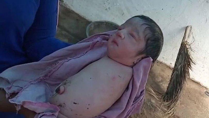 Hindistan'da kolları ve bacakları olmadan doğan bebek şaşkına çevirdi - Haberler