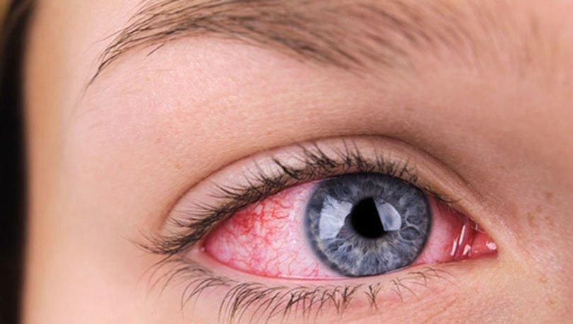 Gözde kanlanma neden olur? Göz kanlanması nedenleri nelerdir?