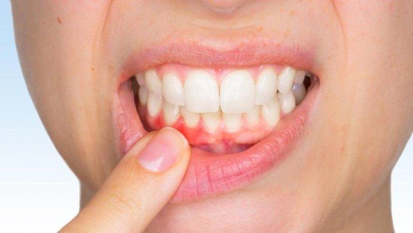 Diş eti kanaması neden olur? Nedenleri nelerdir? hbrt