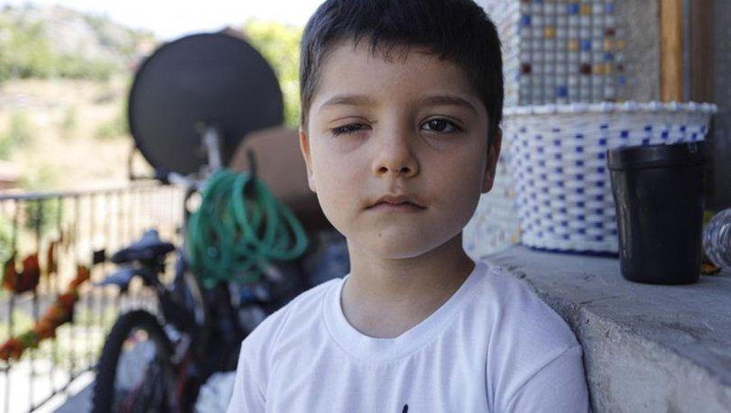 Son dakika haber! 'soda açma' akımı 5 yaşındaki Çınar'ın hayatını kararttı