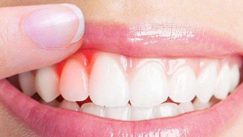 Diş eti kanaması neden olur? Nasıl önlenir?