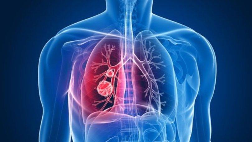 Tüberküloz (Verem) hastalığı nedir, nasıl bulaşır? Tüberküloz hastalığı belirtileri nelerdir?