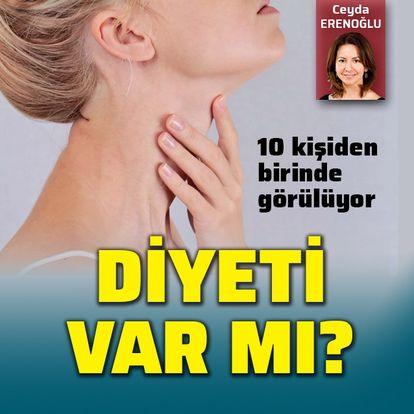 Tiroid diyeti var mı?