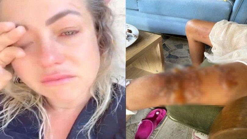 Yeliz Yeşilmen'in kızının bacakları yandı - Magazin haberleri