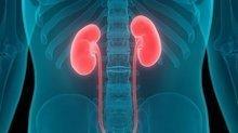 Pandemi sürecinde periton diyalizi böbrek hastalarına umut veriyor