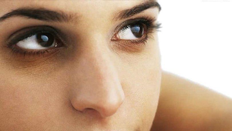 Göz altı morluklarının nedenleri ve önüne geçmenin yolları nelerdir?