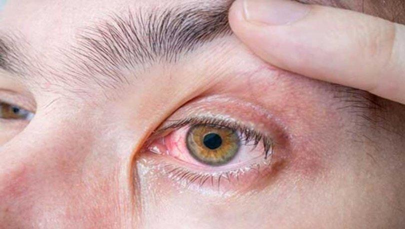 Göz ağrısı nasıl geçer?