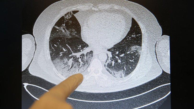 Son dakika! Covid-19'un akciğerlere verdiği zarar tomografi görüntülerine yansıyor - Haberler
