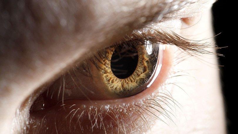 Son dakika! Kırmızı göz (konjonktivit) de koronavirüsle bağlantılı çıktı! - Haberler