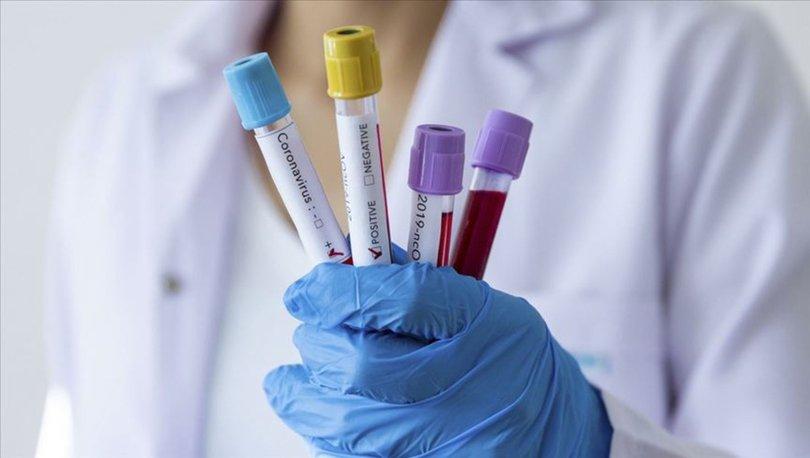 Koronavirüs nedir? Yeni koronavirüs nasıl bulaşır? İşte Covid-19 belirtileri