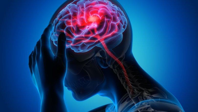 Covid-19 Alzheimer hastalığını ilerletiyor! - Haberler