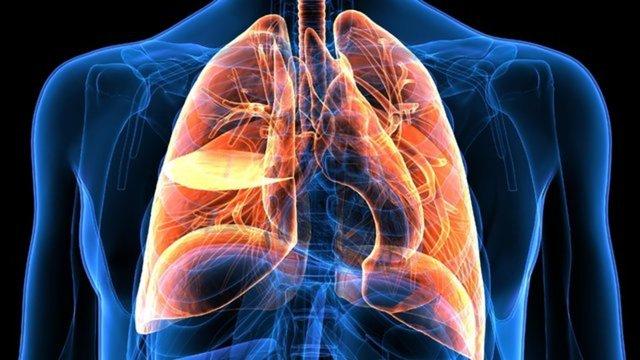 Akciğer kanseri belirtileri nelerdir? En sık ölüm nedeni olan Akciğer hastalığı hakkında detaylar - Haberler