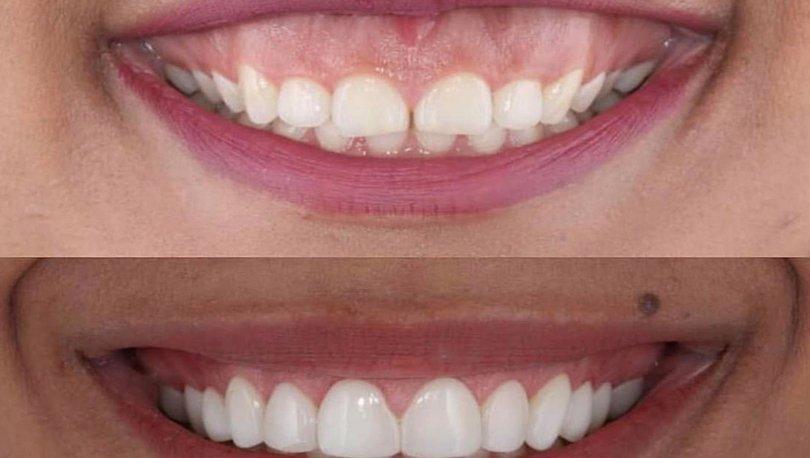 Diş eti hastalığı nedir, nasıl geçer? Diş eti hastalığına ne iyi gelir?