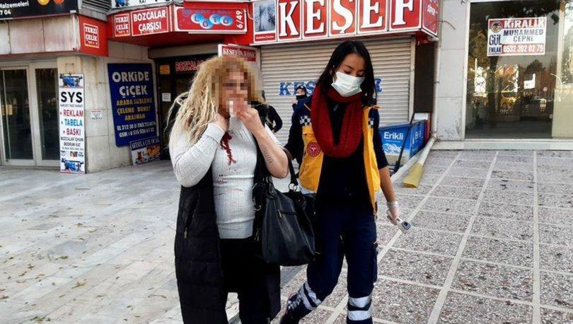 MAKASLA DEHŞET! Son dakika... 'Kadına Şiddetle Mücadele Günü'nde eşine makasla saldırdı! - Haberler