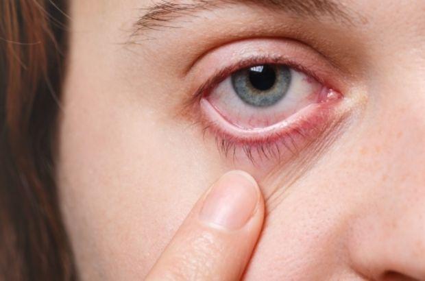 Adenovirüs nedir?