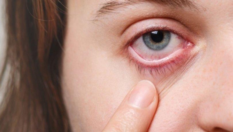 Adenovirüs nedir? Adenovirüs nasıl bulaşır, belirtileri nelerdir?