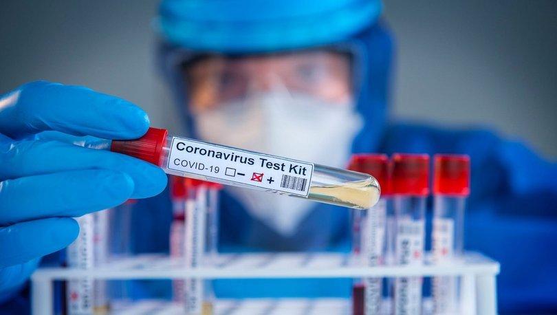 Covid-19 test sonucu öğrenme: e-Nabız korona virüs test sonucu sorgulama ekranı!