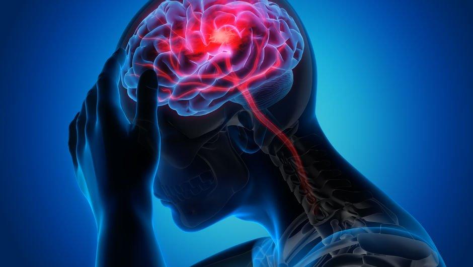 O da koronavirüsün sonucu: Beyin sisi