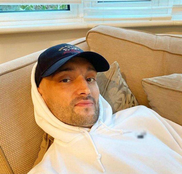 Tom Parker: Beynimdeki tümörde azalma oldu - Magazin haberleri