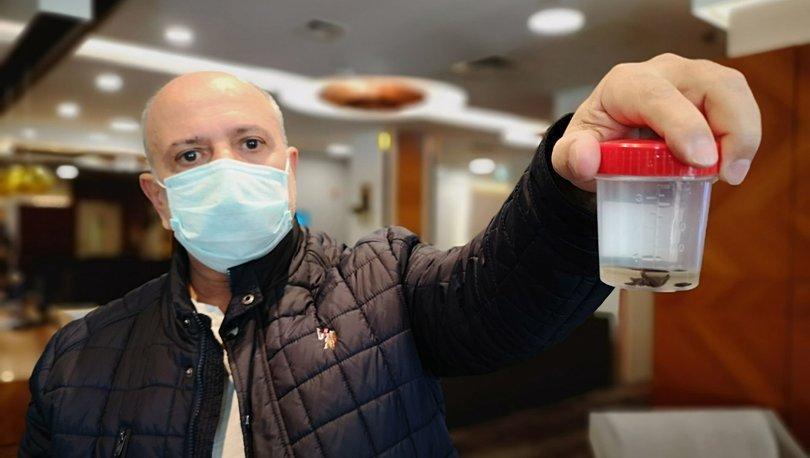 ŞOKE ETTİ! Kanser sandılar, biyopsi bile yapıldı ama... Akciğerinden öyle bir şey çıktı ki... - Haberler