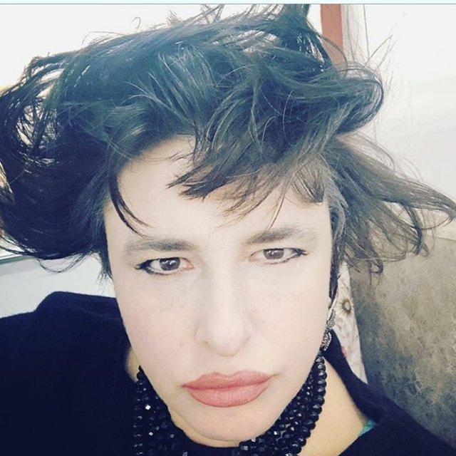 Esra Dermancıoğlu hastalığını açıkladı - Magazin haberleri