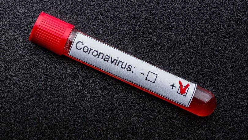 Koronavirüs 96 yaşındaki tek yumurta ikizlerini ayırdı