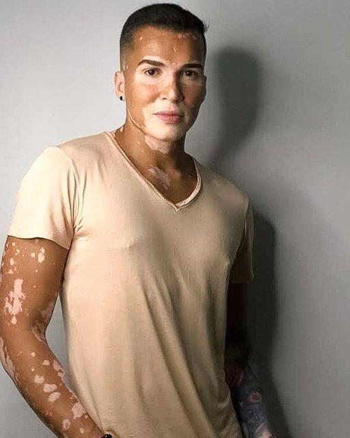 Vitiligo hastası Roger Monte'nin ten rengi giderek beyaza dönüyor