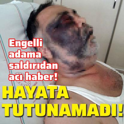 Engelli adama saldırıdan acı haber!