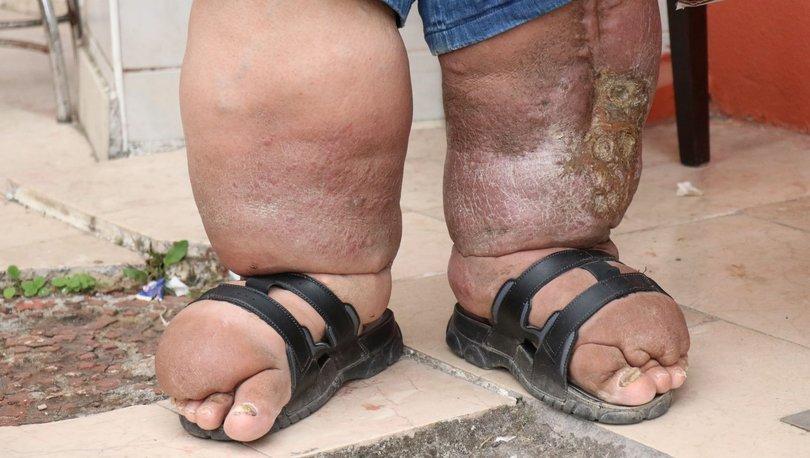 Dikkat! Ayakkabı veya giysiler vücudu sıkıyorsa... - Haberler