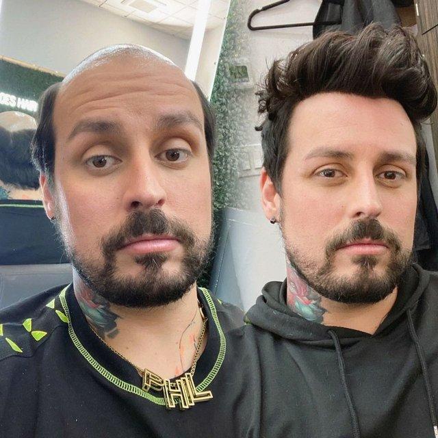 Protez saç ile erkeklerin değişimi sosyal medyada şaşırttı
