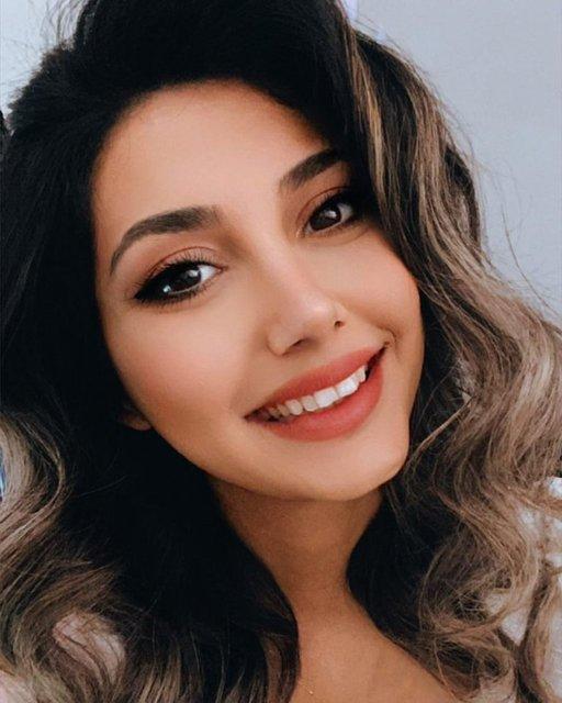 Ceylan'ın kızı Melodi Bozkurt estetikle bambaşka biri oldu! İşte Ceylan'ın kızı - Son dakika Magazin haberleri