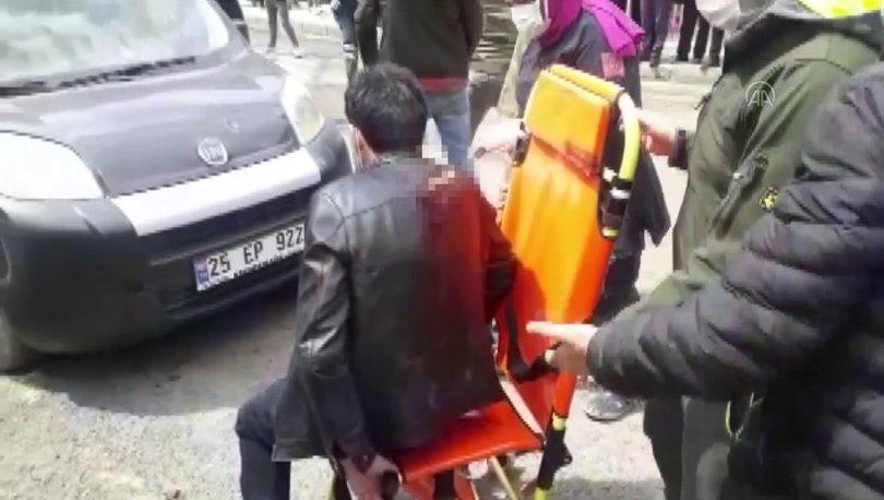 FECİ GÖRÜNTÜ! Son dakika: Sırtında bıçakla hastaneye getirildi - Haberler
