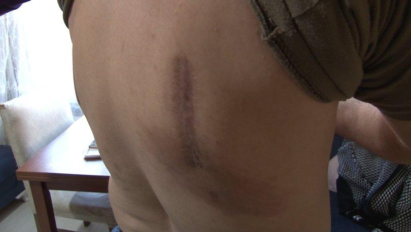 Şiddetli öksürük yüzünden kaburgaları kırıldı - Haberler