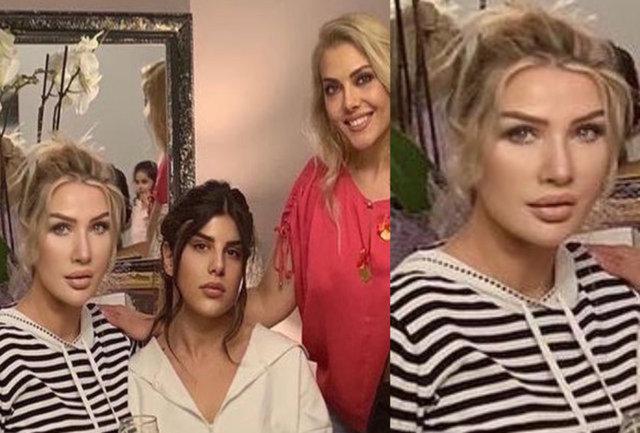 Seda Sayan'ın büyük değişimi! İşte geçirdiği estetik operasyonlar - Magazin haberleri