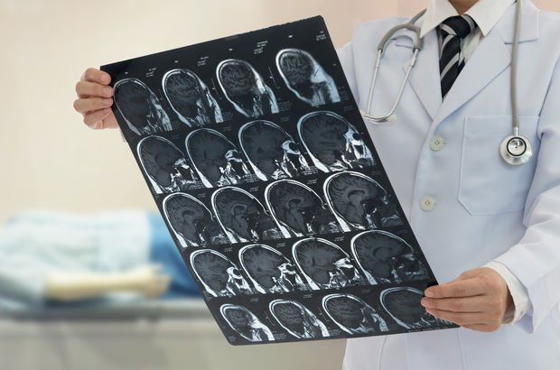 Nöroloji uzmanından müsilaj uyarısı: Felç riski
