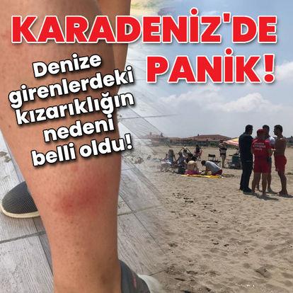 KARADEBİZ'DE PANİK! Son dakika: Karasu'da denize girenlerin kızarıklığının nedeni belli oldu! - Haberler