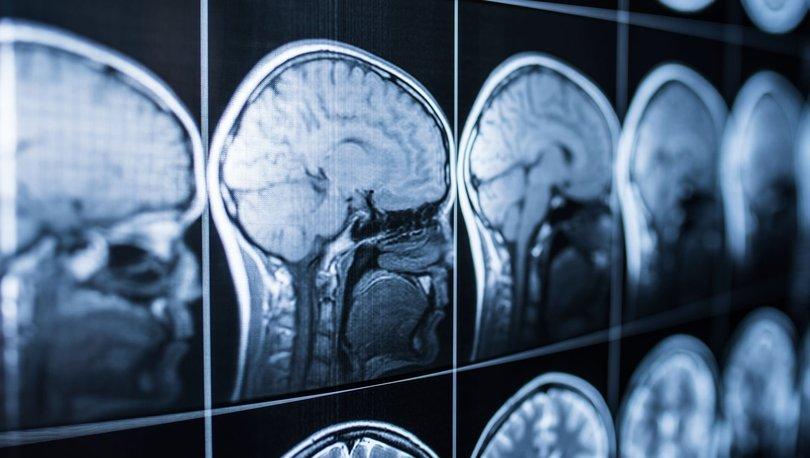 Uzak durun! Bu nedenler beyni erken yaşlandırıyor!