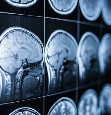 Beyin gerektiği gibi çalışıyorsa tüm vücut da gerektiği gibi çalışıyor demektir. Aynı şekilde eğer beyinde bir problem varsa bu durum çok kısa bir sürede vücuda da yansıyacaktır. Beyni genç tutmanın formülü sağlıklı yaşamda gizli ancak bu hayati organı erken yaşlandıran nedenler de var. Peki beynimizi nasıl sağlıklı tutacağız? Cerrahpaşa Tıp Fakültesi Nöroloji Ana Bilim Dalı