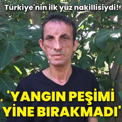 Türkiye'nin ilk yüz nakillisiydi! 'Yangın peşimi yine bırakmadı'