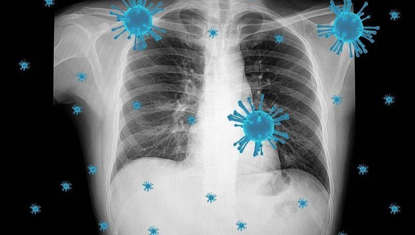 Covid-19 gelecek yıllarda çocuk hastalığı haline gelebilir - Haberler
