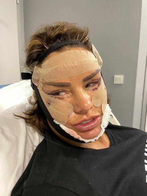 Katie Price evinde saldırıya uğradı: Yüzünden darbe aldı! - Magazin haberleri