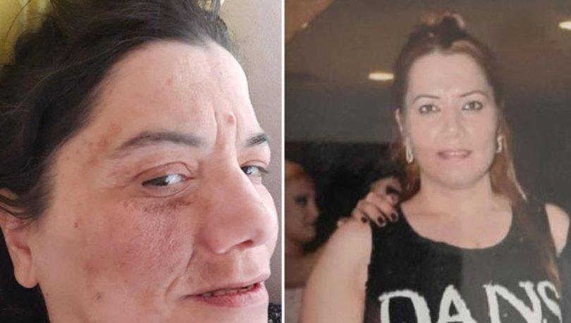 Damak tedavisinde yüz felci olan Yeliz, hayatını kaybetti