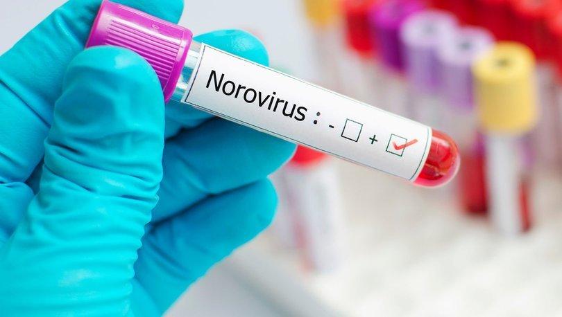Son dakika UYARI! Bilim Kurulu Üyesi Prof. Dr. Yavuz'dan Norovirüs uyarısı - Haberler