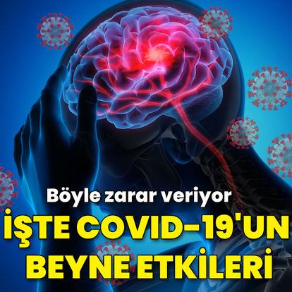 İşte Covid-19'un beyne etkileri! Böyle zarar veriyor