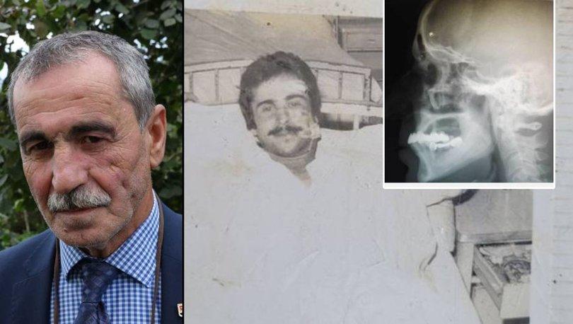 SON DAKİKA: 43 yıl sonra unvanına kavuştu! Başı ağrıdı, yıllardır orada olduğu ortaya çıktı