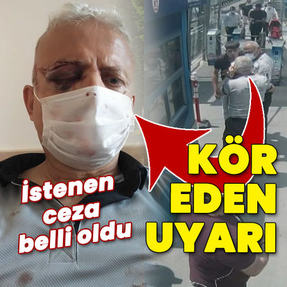 Kör eden maske kavgasında 4,5 yıl hapis istemi